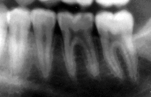 douleurs a molaire pour mastiquer