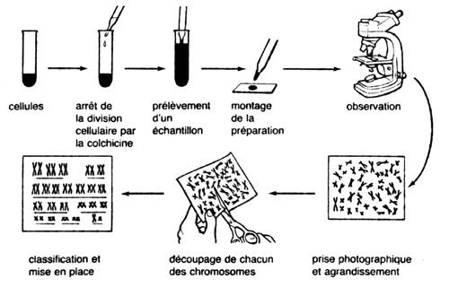 mitoses chromosomes positifs